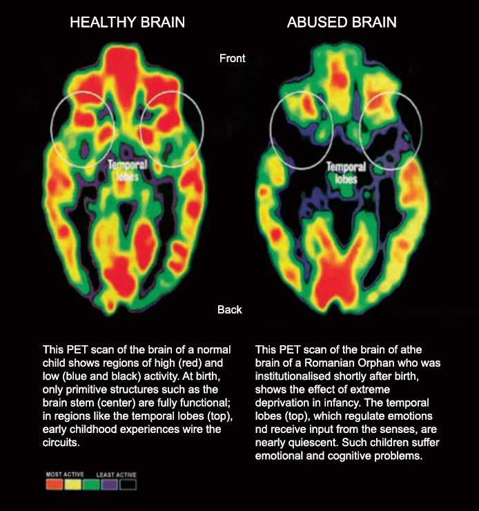 Abused vs healthy Brain